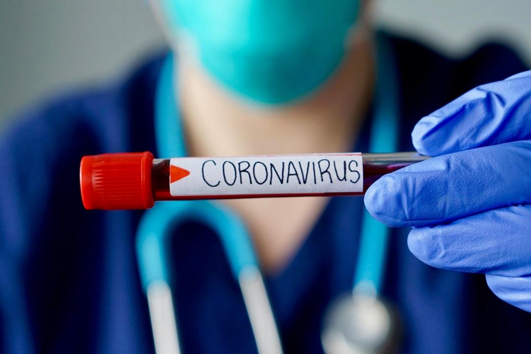 coronavirus fontana conte