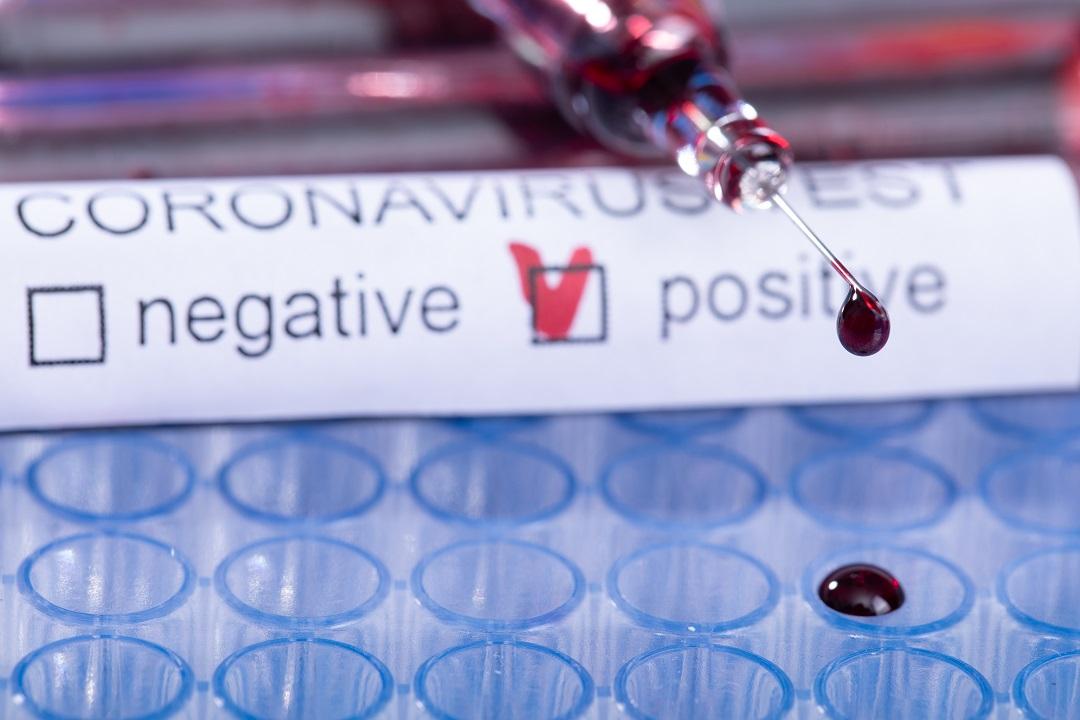 coronavirus test 21 aprile