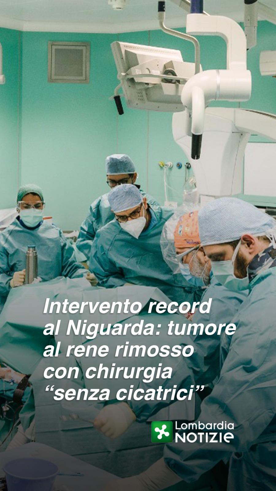 """Niguarda – rimosso tumore al rene con chirurgia """"senza cicatrici"""""""